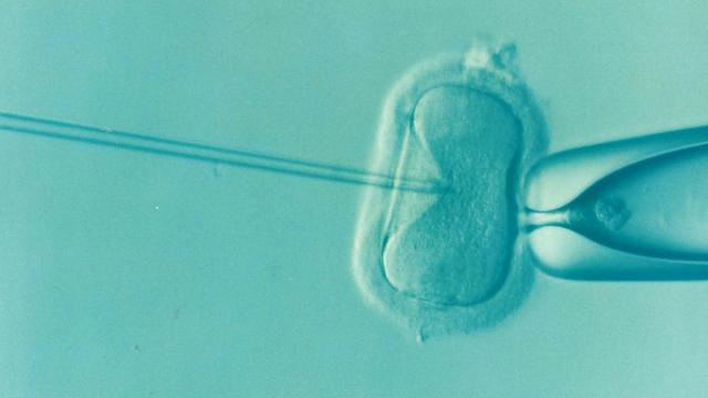 세포와바늘 이미지